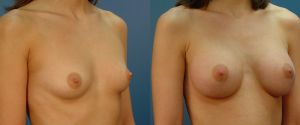 breast-aug-01b