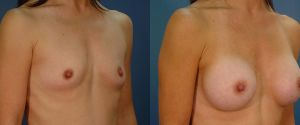 breast-aug-11b