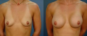 breast-aug-12a