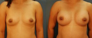 breast-aug-14a