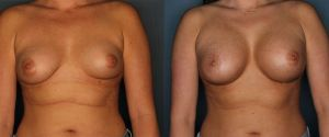breast_lift-ab1-ab2