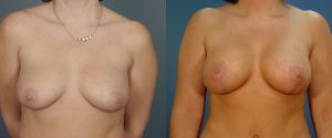 breast_lift-aug-01a