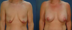 breast_lift-aug-02a