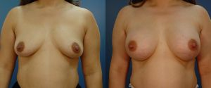 breast_lift-aug-03a
