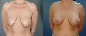 breast_lift-aug-05a