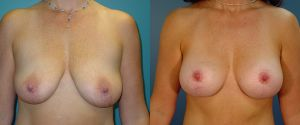 breast_lift-aug-06a
