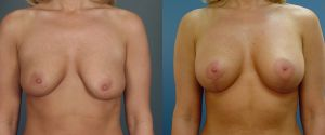 breast_lift-aug-09a