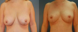 breast_lift-aug-10a