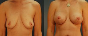 breast_lift-aug-11a