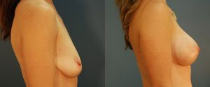 breast_lift-aug-11b