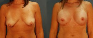 breast_lift-aug-12a