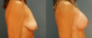 breast_lift-aug-12b