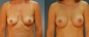 breast_lift-aug-13a