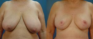 breast-reduc-03a