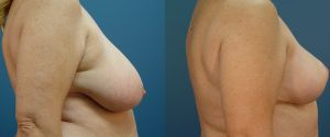 breast-reduc-03b