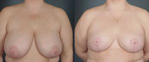 breast-reduc-04a