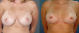 breast-reduc-06a