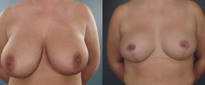 breast-reduc-08a