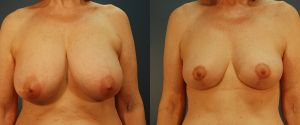 breast-reduc-10a