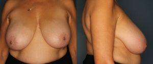 breast-reduction-patient-1