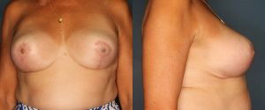 breast-reduction-patient-2