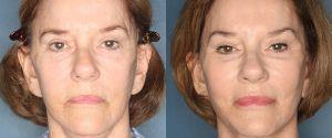facelift-patient-26-1
