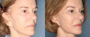 facelift-patient-26-2