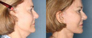 facelift-patient-26-3