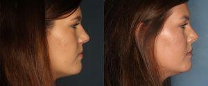 Right-Side-Rhino-Upper-Eyelid-Lift