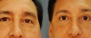 upper-eyelid-01a