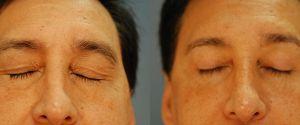 upper-eyelid-01b