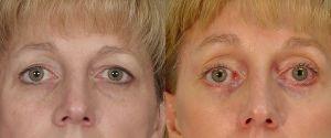 upper-lower-eyelid-01a