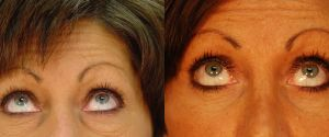 upper-lower-eyelid-02b