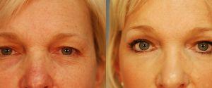 upper-lower-eyelid-03a