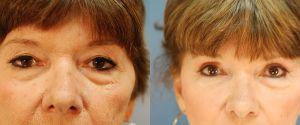 upper-lower-eyelid-04a