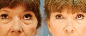 upper-lower-eyelid-04b