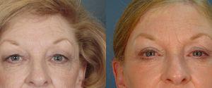 upper-lower-eyelid-05a