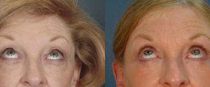 upper-lower-eyelid-05b