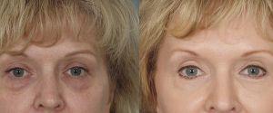 upper-lower-eyelid-06a