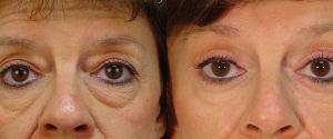 upper-lower-eyelid-07a