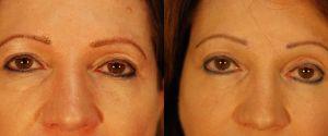 upper-lower-eyelid-08a