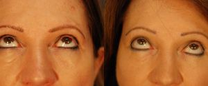 upper-lower-eyelid-08b