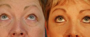 upper-lower-eyelid-09b