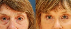 upper-lower-eyelid-10a