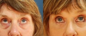 upper-lower-eyelid-10b