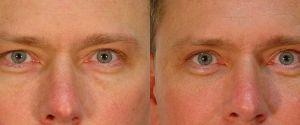 upper-lower-eyelid-11a