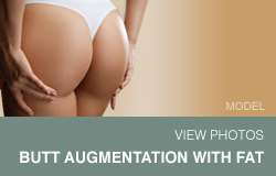 Buttock Augmentation With Fat